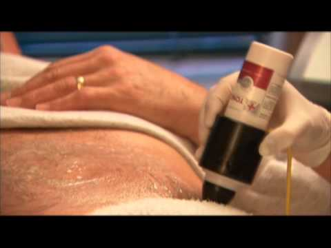 Dr. Darm's Lipolift™ I (Mesoporation™ and VelaShape™) at Aesthetic Medicine