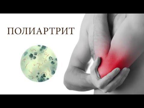 Как лечить полиартрит рук в домашних условиях