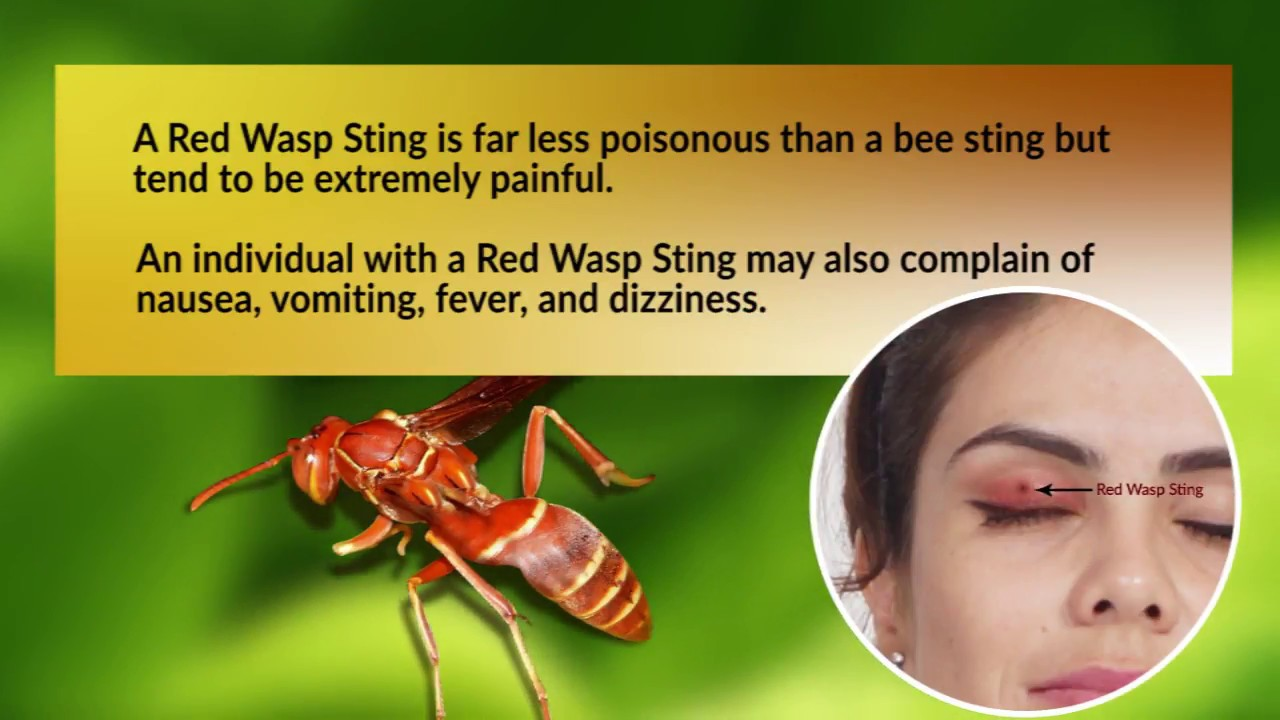 Paper wasp sting treatment
