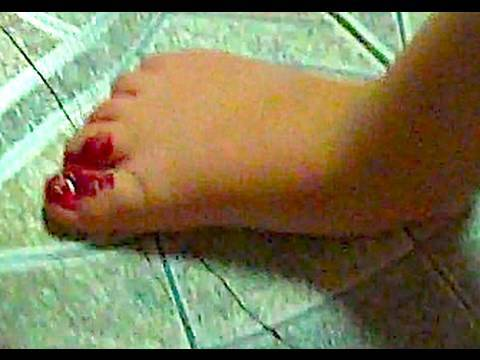 BABY CUTS OFF TOE! (10/1/09-211) Video