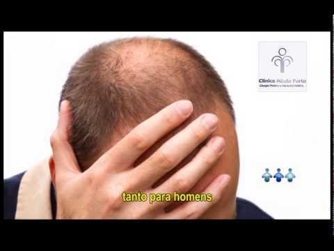 CIRURGIA PRÁTICA - CARBOXITERAPIA