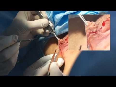 Title: Abdominoplastika, Qarin germe emeliyyati,Abdominoplastika Baki