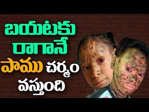 బయటకు రాగానే పాము చర్మం వస్తుంది  | ABN Telugu
