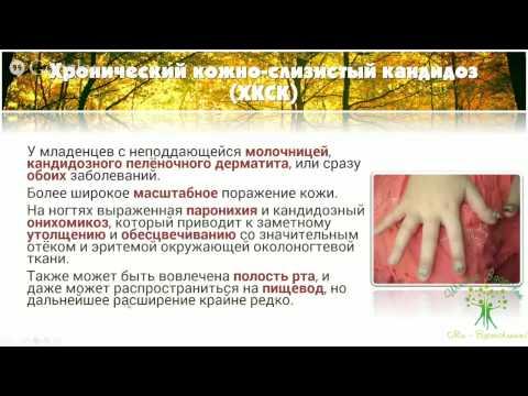 """Download Youtube: Михаил и Алина Титовы. Вебинар """"Как избавиться от молочницы"""""""