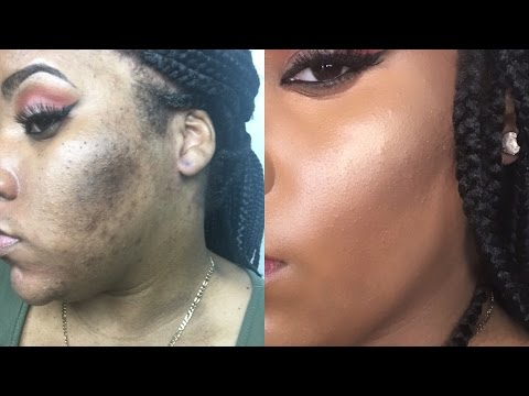 HOW TO COVER ACNE SCARS & HYPERPIGMENTATION