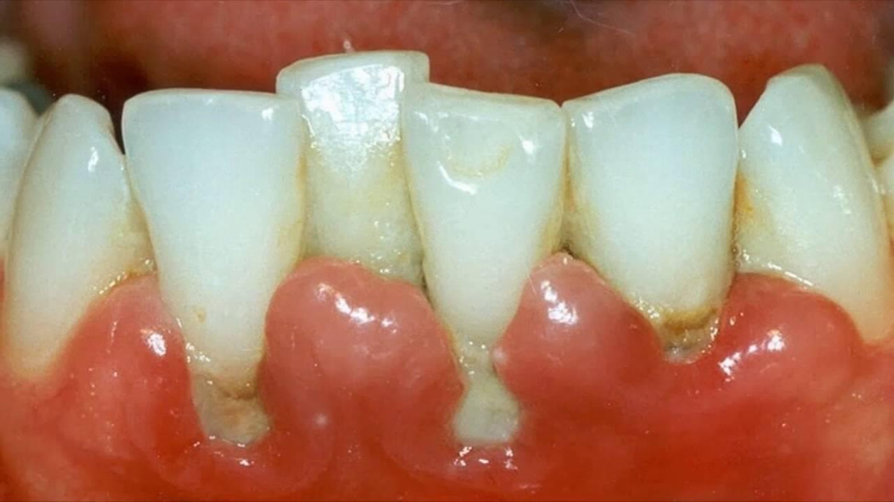 Как лечить воспаление зубов в домашних условиях 2
