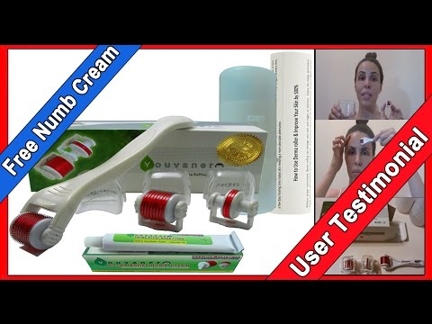 Amazon Youyaner Derma Roller Kit Review - Micro Needling for Scars, Wrinkles & Stretchmarks 50% Off