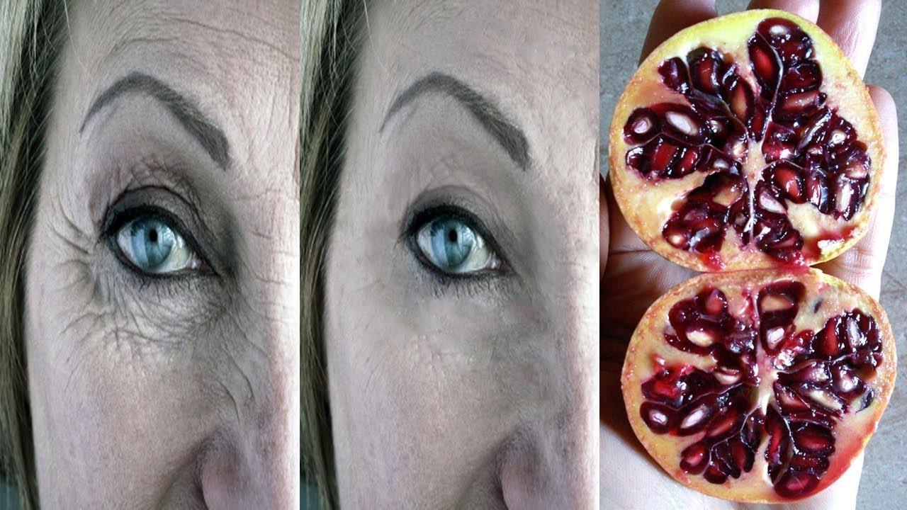 علاج تجاعيد العين || جلد العينين المنكمش سيختفي نهائيا لن تبقى التجاعيد مهما كانت كثيرة