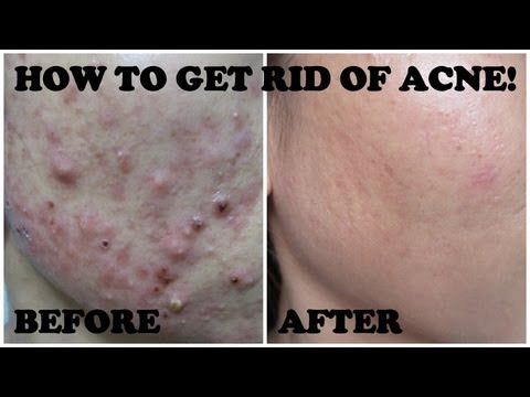 How to get rid of ACNE!