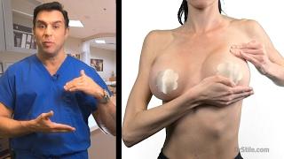 Post Operative Breast Massage