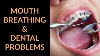 Mouth Breathing And Dental Problems