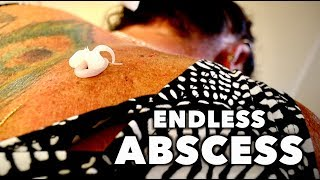 DRAINING MY WIFES ENDLESS BACK ABSCESS! | Dr. Paul