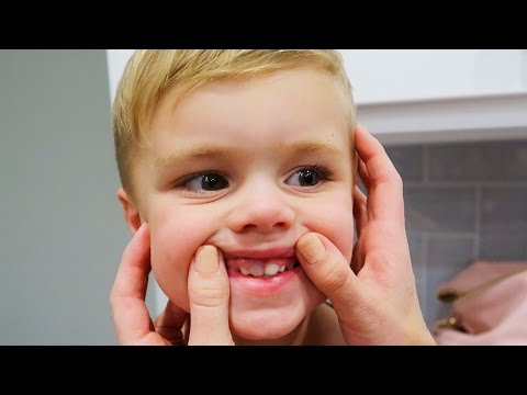 TODDLER TOOTH ACCIDENT RESULTS!