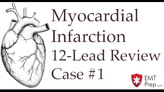 Case 1 - Acute M.I. - Reading 12-Lead ECGs - EMTprep.com