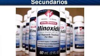 Minoxidil: Efectos Secundarios   Lo Que Las Farmacéuticas No Quieren Que Sepas