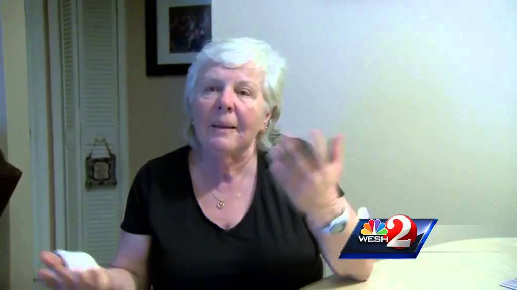 Dog Bites on Arm Dogs Attack Bite Woman in