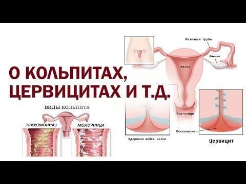 Лечение кольпитов, цервицитов и эрозий натуральными свечами hcdin.ru