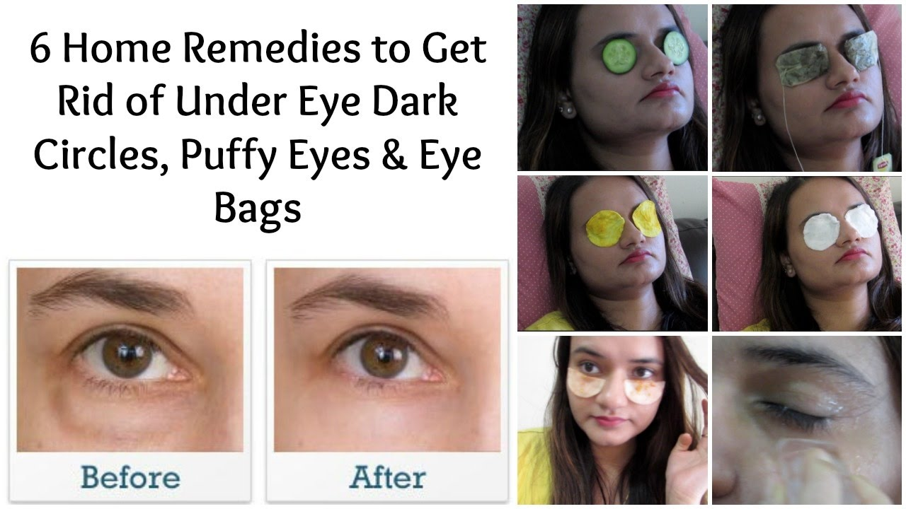 How to Cure Baggy Eyes photo