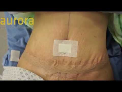 Tummy Tuck Surgery (Abdominoplasty)