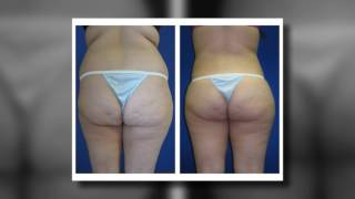 Phoenix Liposuction Results: Female Waist
