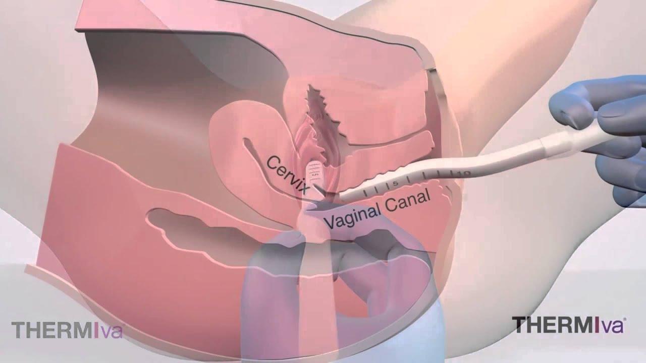 Vaginy Tight by THERMItight VA