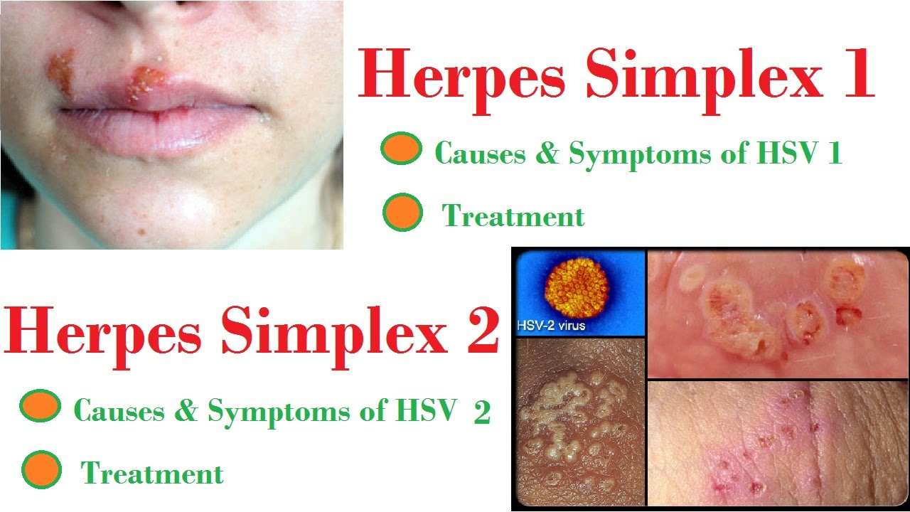 Herpes simplex 1 uptodate yale