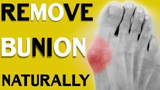 How to Treat Bunions? 3 Simple Methods to Get Rid of Bunions   Without Surgery