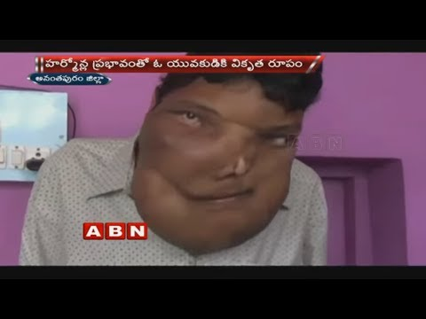 23-year-old boy with hormonal imbalance seeks financial aid | Anantapur district