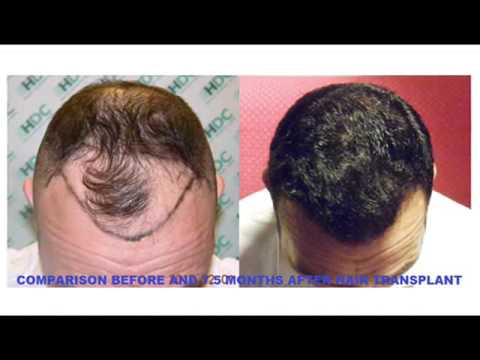 FUE Hair Transplant Result - 3050 Grafts - HDC Hair Transplant Clinic