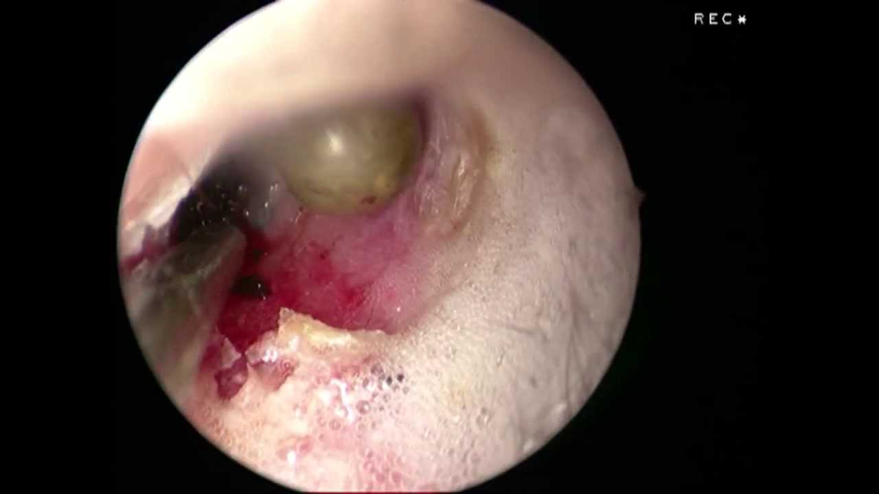 Tick In Dog Ear Canal