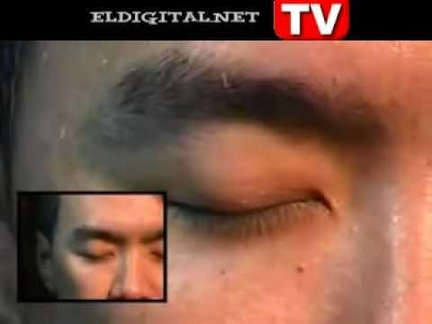 Gusanos retirados de la cara de un infectado youtube for Gusanos blancos en la cocina