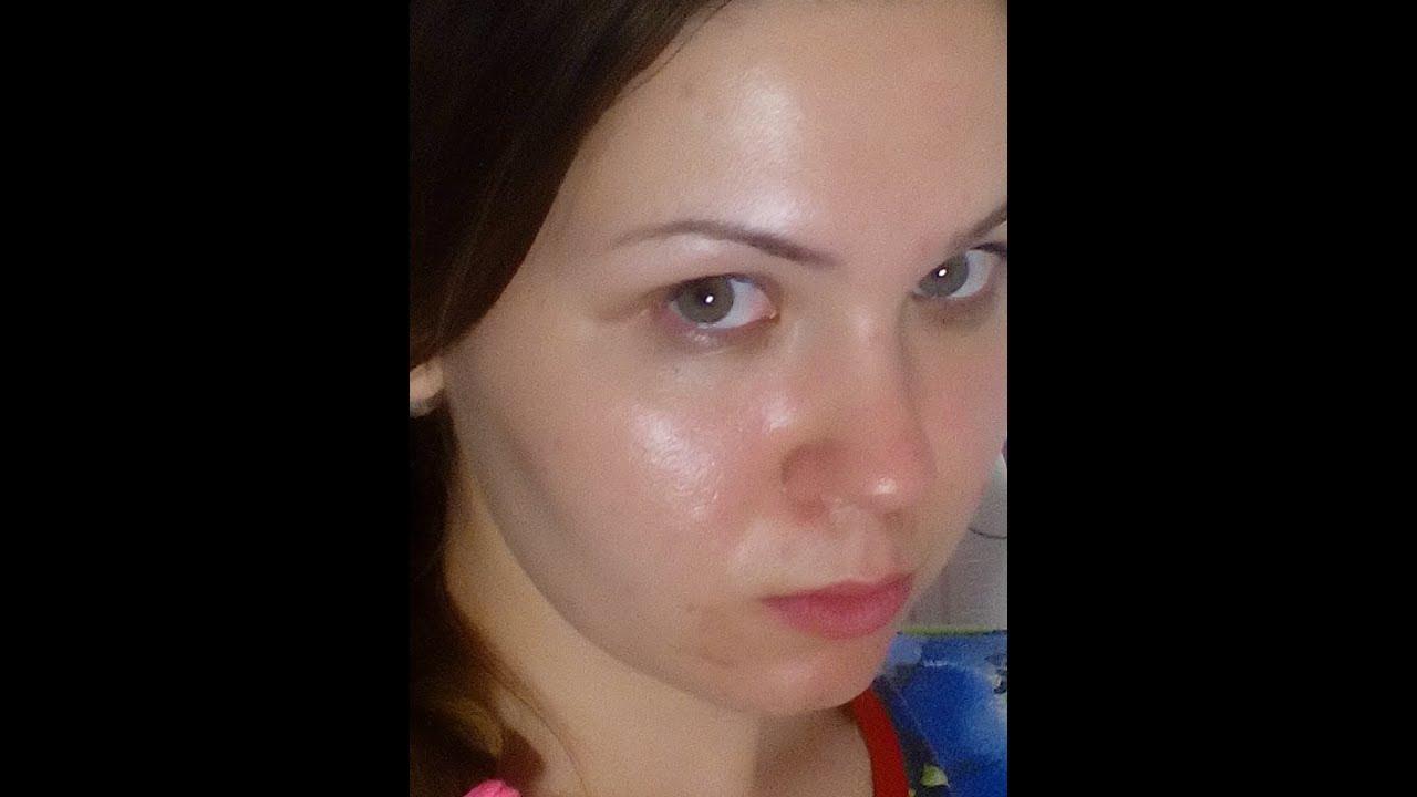 Если кожа становится очень жирной на лице