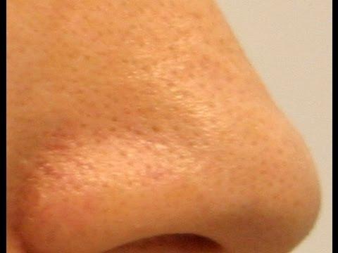 Understanding Enlarged Pores