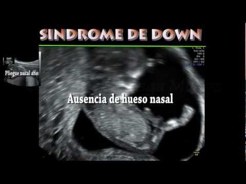 Diagnostico del Sindrome de Down Trisomia  Diagnostico prenatal ecografia genetica  Dr. R.Ortega