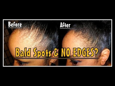 NO EDGES THINNING EDGES Hair Loss Bald Spots / TOPPIK Hair Building Fiber