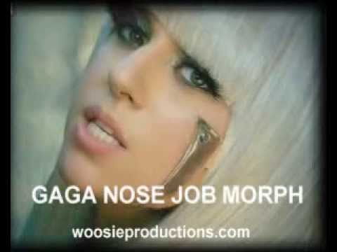 GaGa Nose Job Morph HQ. GaGa Nose Job Morph HQ. 0:37. Lady had some work