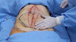 Rapid Recovery Tummy Tuck 2013