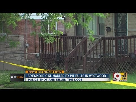 Pit bulls attack child in Westwood