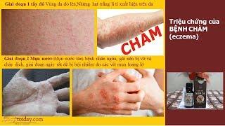Bệnh Chàm Da   Thuốc chữa đặc trị bệnh chàm da mới nhất- Shoptoiday.com