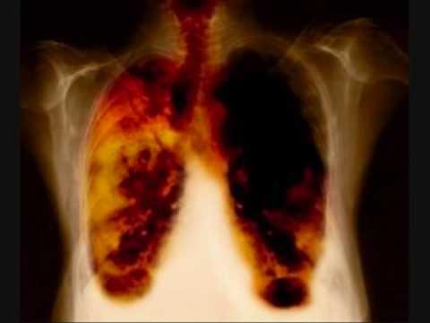 remedios caseros para las flemas en los pulmones