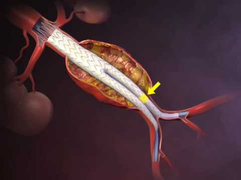 Deployment of an Endovascular Graft in an Abdominal Aortic Aneurysm (VIDEO)