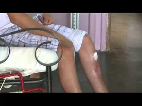 Joven clama porque le reconstruyan pierna con quebraduras múltiples