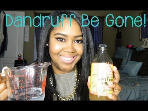 Dandruff Solution   Apple Cider Vinegar Treatment