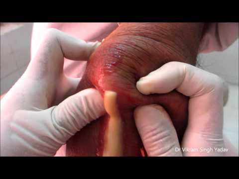 Drainage Of Large Abscess- Elbow Joint