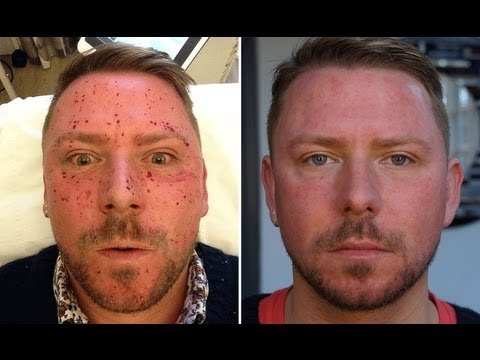 MY SKIN LASER EXPERIENCE! OUCH! BEFORE AND AFTER! WARNING REQUIRED LOL