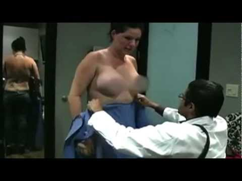 My Beverly Hills Breast Augmentation Surgery with Silicone Implants