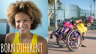 Spina Bifida Won't Hold This 12-Year-Old Back | BORN DIFFERENT