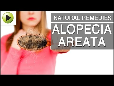 Natural Home Remedies for Alopecia Areata