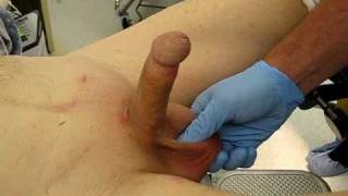 Video clip Inflation and deflation of penile implant