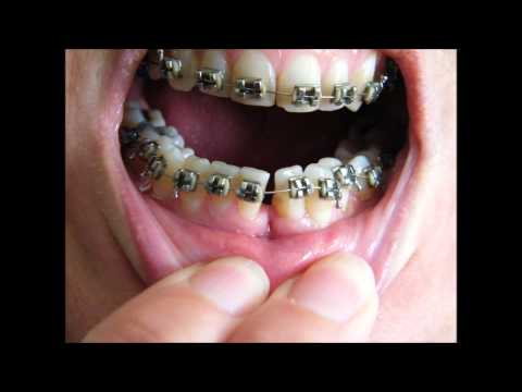 Braces before and after timelapse 36 yr old